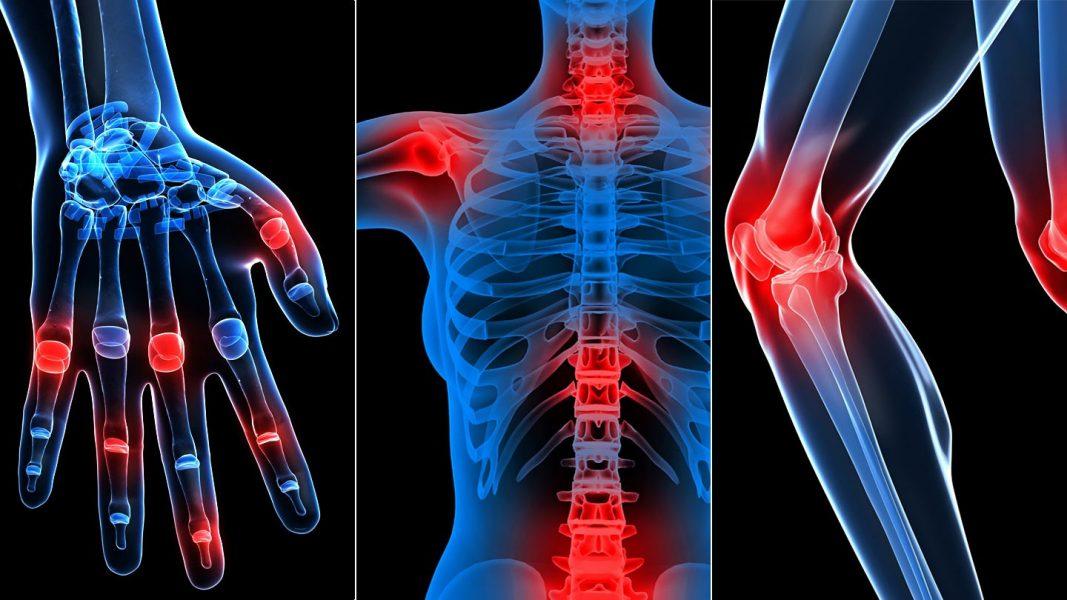 lábak ízületi fájdalmak esetén ízületi fájdalom izomvírus