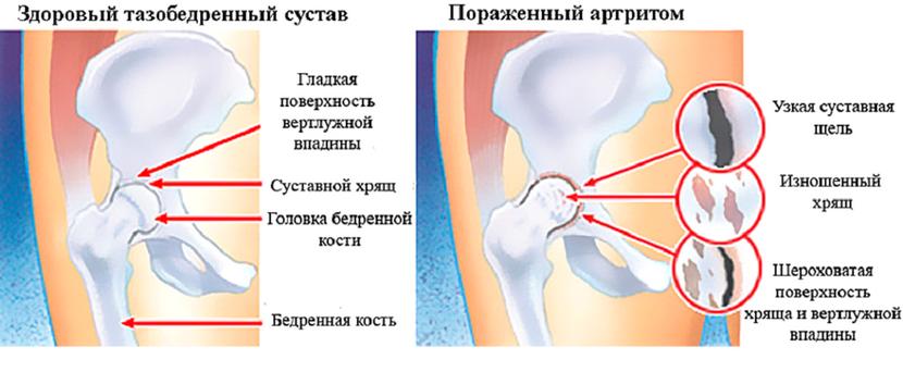 a csípőízületek fájnak, ha nyújtanak)