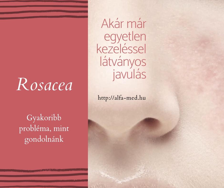 kötőszövet-hiány kezelése)