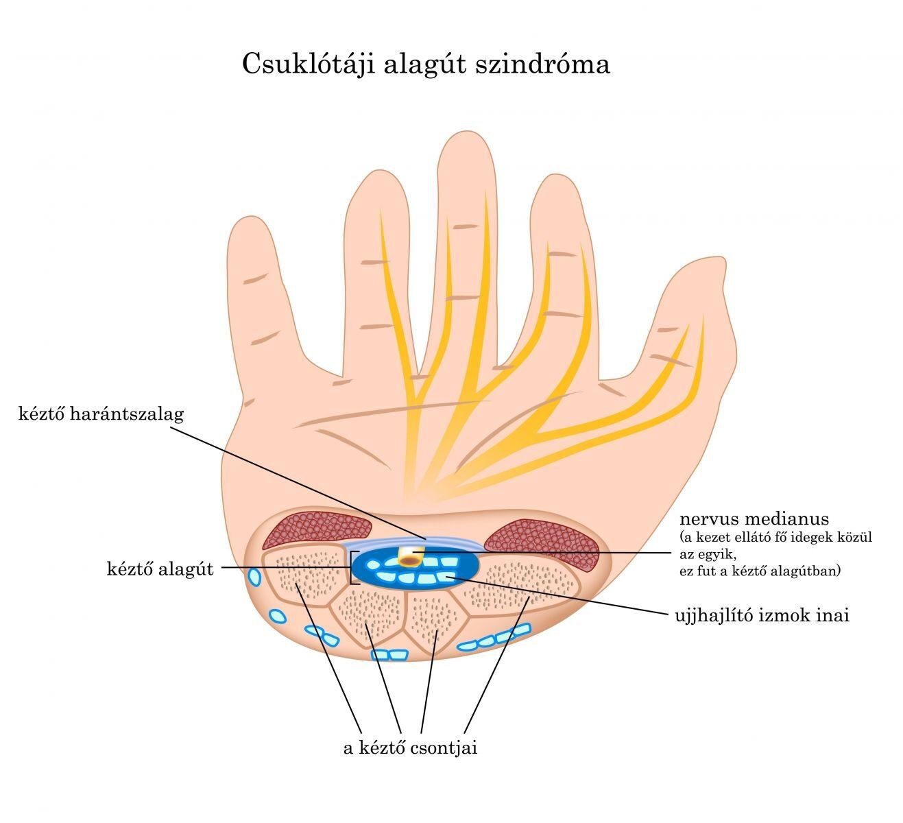 csuklógyulladás okai komplex glükozamin-kondroitin kurzus
