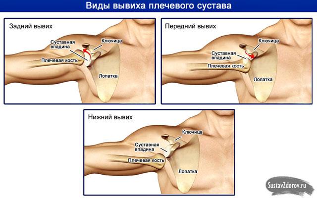 kéz diszlokáció kezelése)