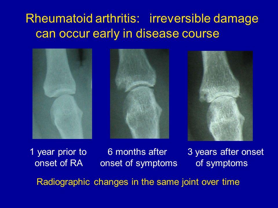 rheumatoid arthritis radiology ppt