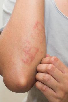 a kalcium ízületei fájnak. foszfor csípőízületek artrózisának kezelésére szolgáló gyógyszerek