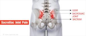 A derékfájdalom, a kor, a nem és a testtömeg index összefüggése