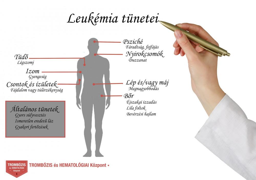 Az alattomos betegség: limfóma - Egészség | Femina