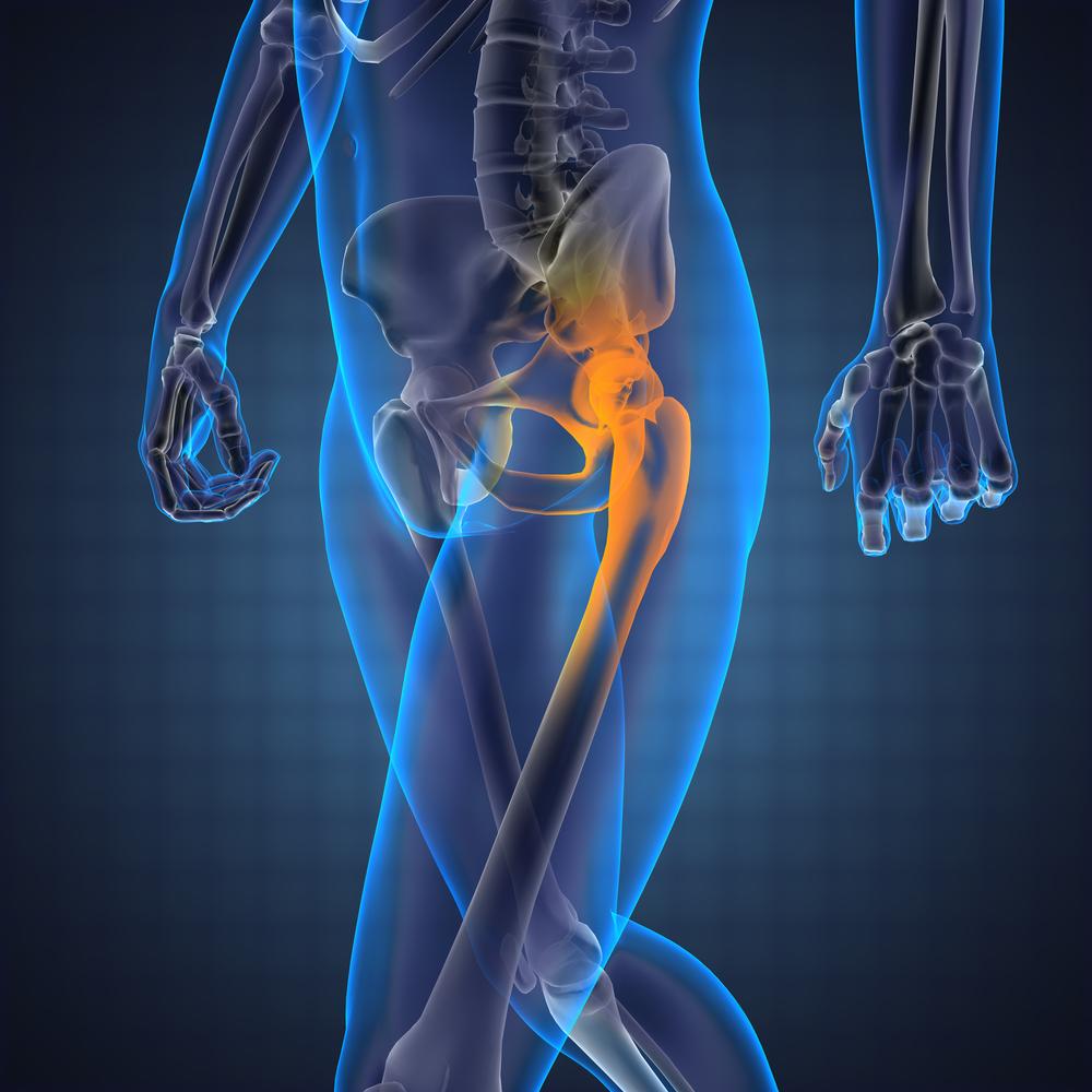 a farokcsont fáj és ízületek a térd deformáló artrózisa 1 fok