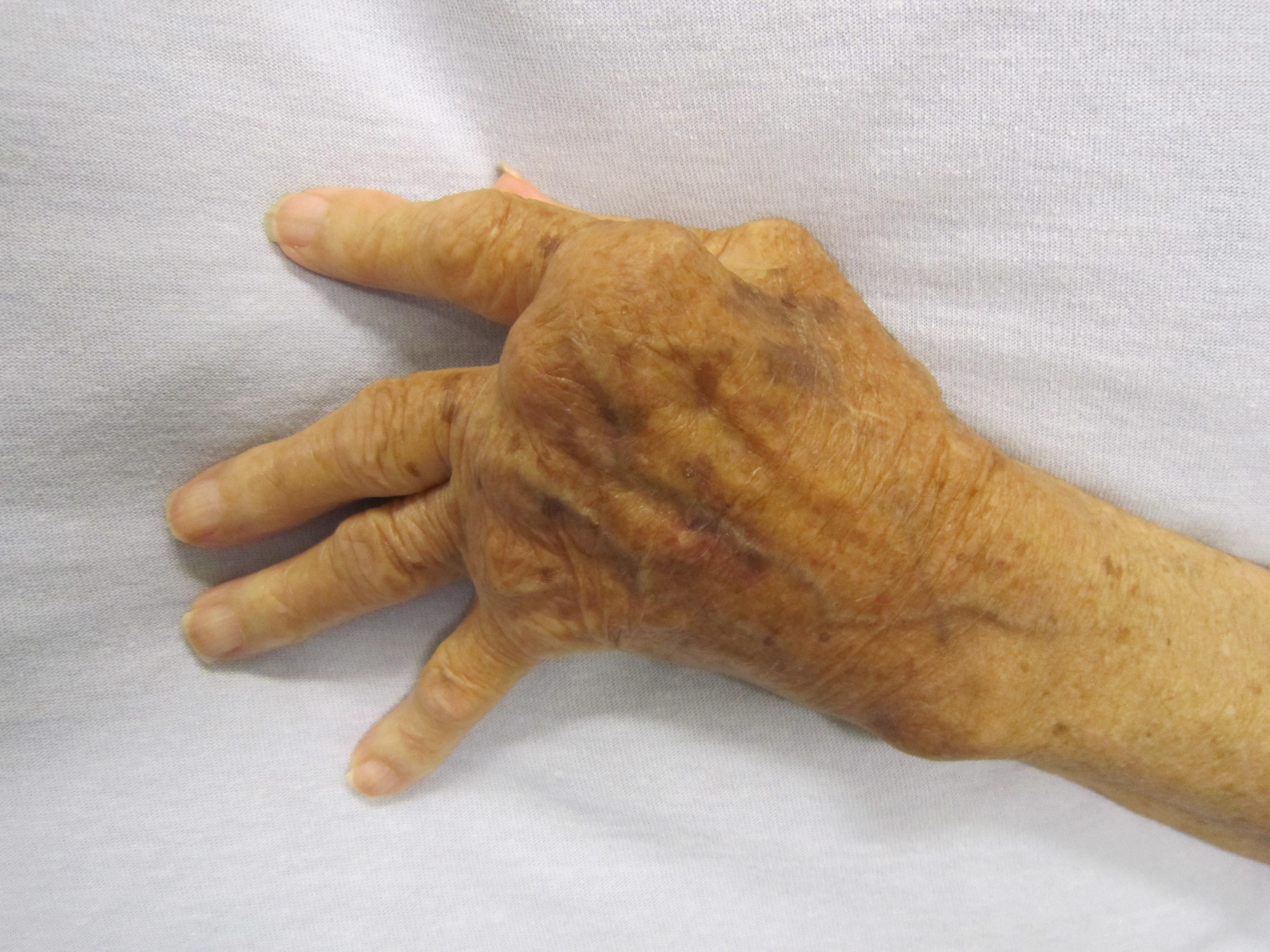 a jobb kéz ízületei ízületi gyulladása)