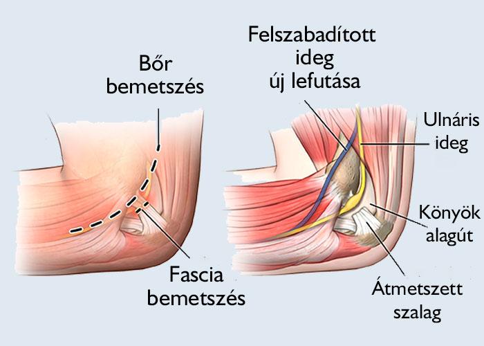 a könyökízület alagút-szindróma kezelése)