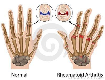 a kéz keze ujjai kicsi ízületeinek ízületi gyulladása)