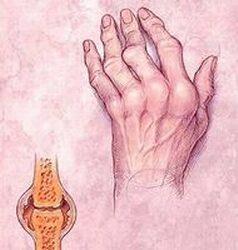 izületi gyulladás fájdalomcsillapítás