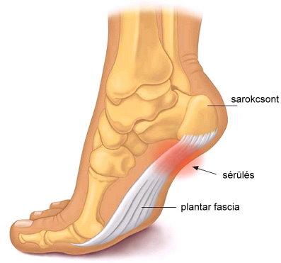 a boka fájdalmának kezelése járás közben kender ízületi fájdalom