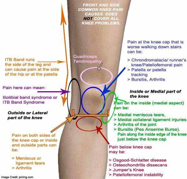 A térd diszlokációja: a térd és a patella diszlokációjának tünetei és kezelése - Ekcéma