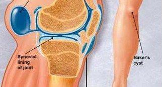 a térd és a láb artrózisának kezelése