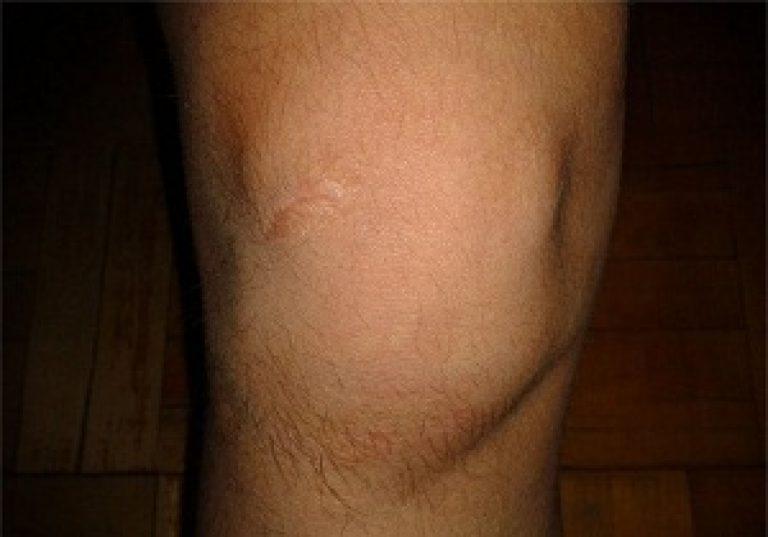 a térdízületek fájdalmainak kenésére)