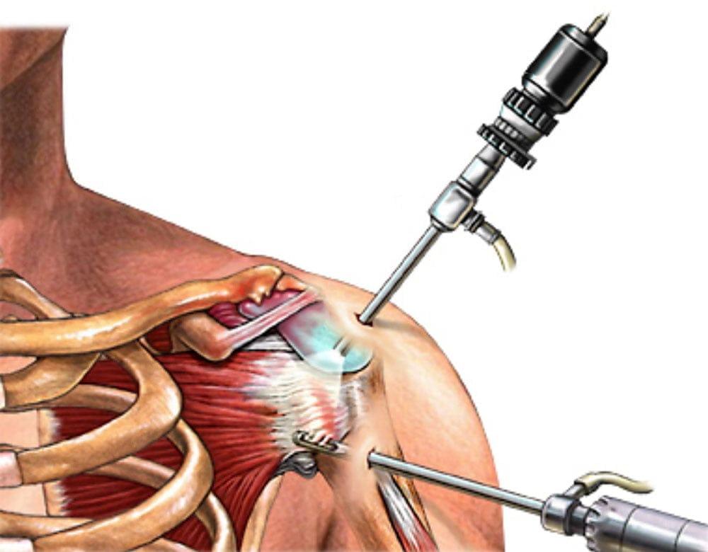 a vállízület kezelésének rotációs mandzsetta károsodása