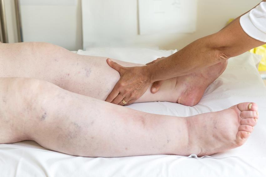 duzzadt láb gyógymódok terhesség alatt kötszer ízületi fájdalom esetén