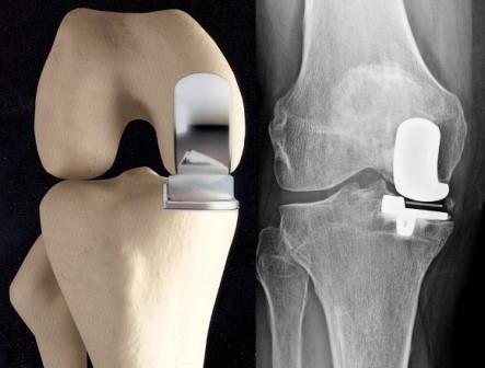 térdízület kezelésében reumatoid artrosis)