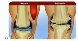 artrózis 3 térd fokban hogyan kell kezelni)