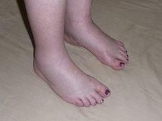 duzzadt láb gyógymódok terhesség alatt hogyan kell kezelni a bokaízületet törés után