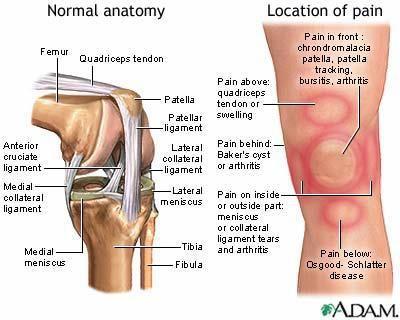 chladimiosis és ízületi fájdalmak térdízület kezelésének diszlokációja