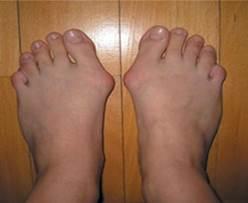 hogyan lehet eltávolítani a gyulladást a lábujj ízületéről