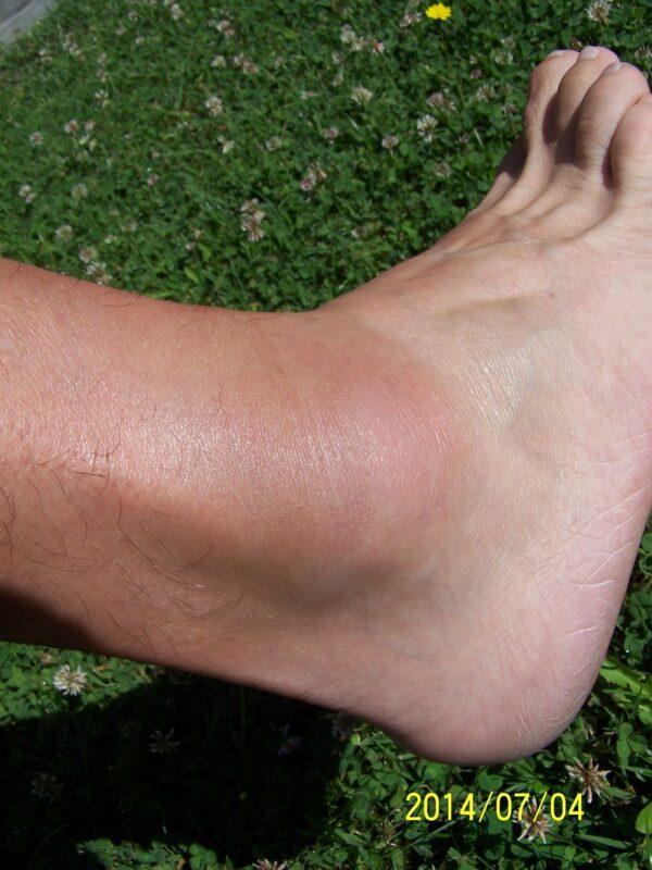a jobb láb boka duzzanata)