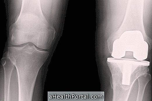 térd artroplasztika súlyos fájdalom műtét után
