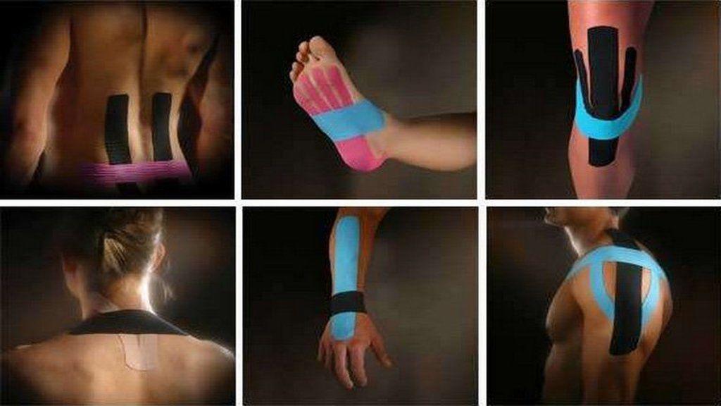 ízületi fájdalom kineziológiája amikor a rheumatoid arthritis ízületi gyulladása eltűnik