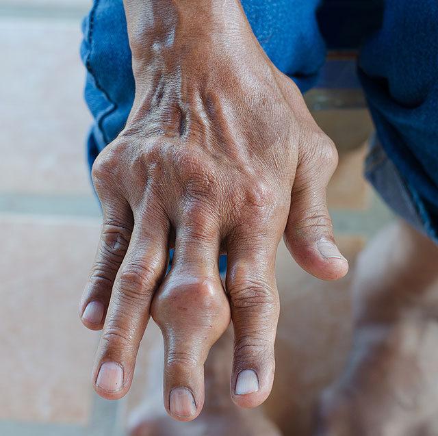 amiből a kezek ízületeinek gyulladása származik)