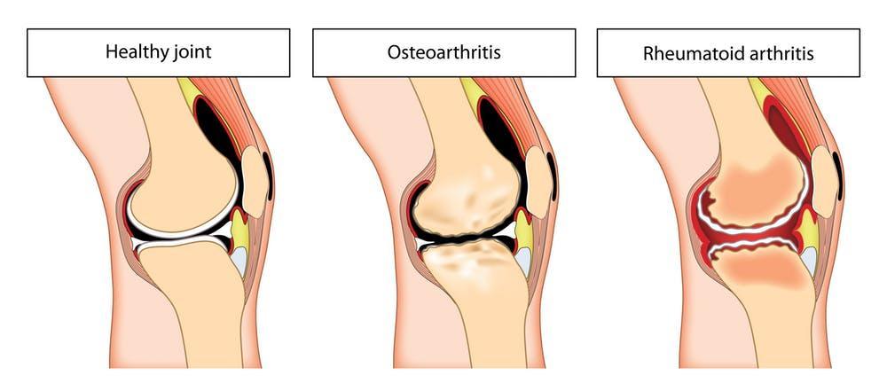 arthritis arthrosis köszvénykezelés
