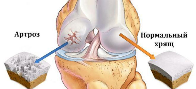 arthrosis burgonya kezelés)