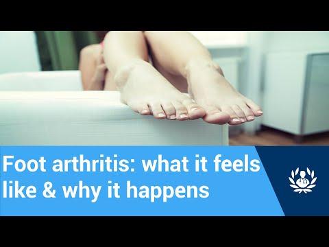 artrózis kefekezelés