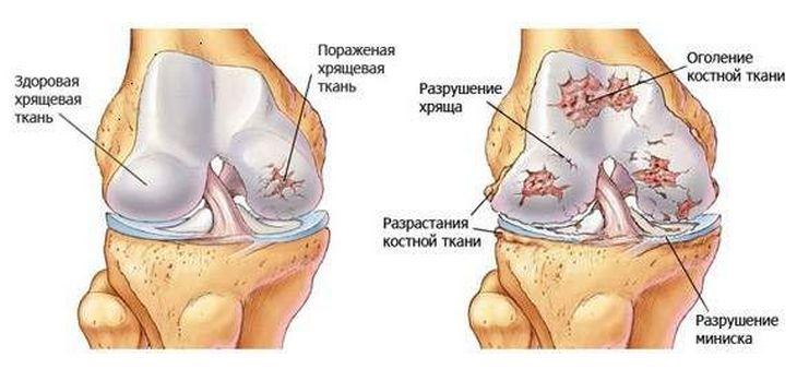 artrózis kezelése kondroprotektorokkal)