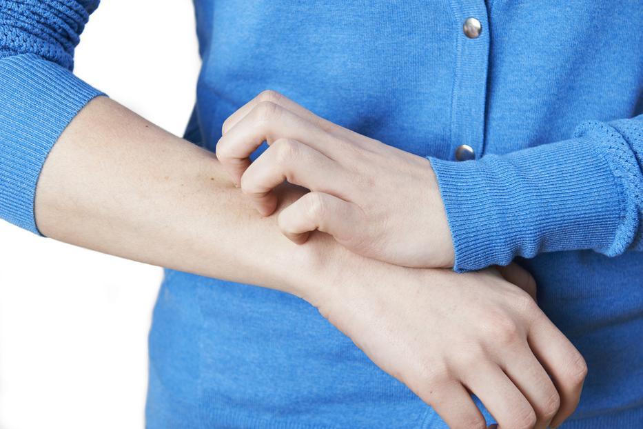 autoimmun kötőszöveti betegségek a testben