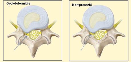 A csípő artrózis tünetei és kezelése, a betegség lényege