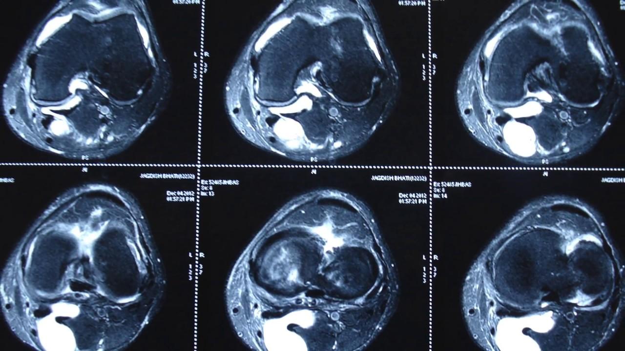 térd avito artrózisa