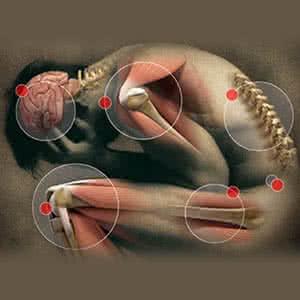 gyömbér izületi gyulladásra ulnar ízületi ízületi kezelés áttekintése