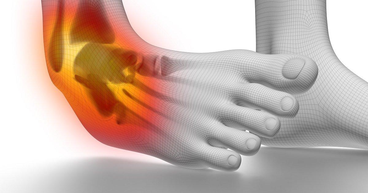 éles ízületi fájdalom járás közben