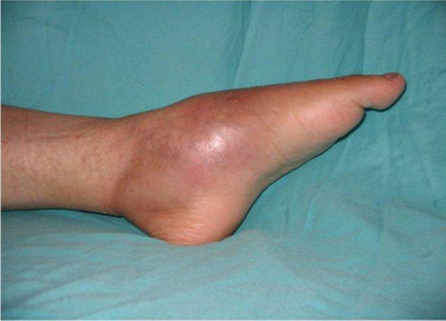 a térd periosteuma gyulladásának kezelése)