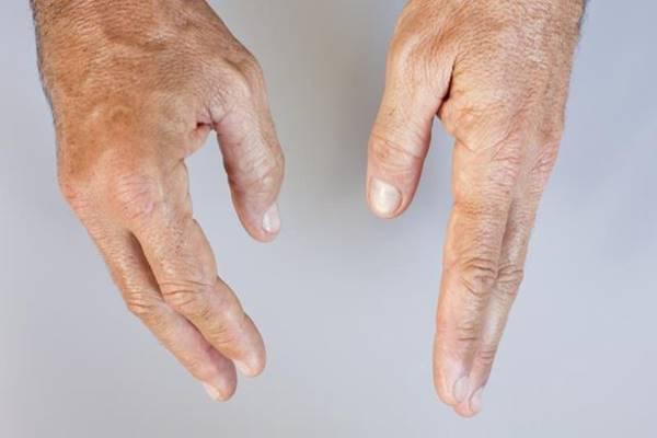 térdfájdalom egy régi sérülés után