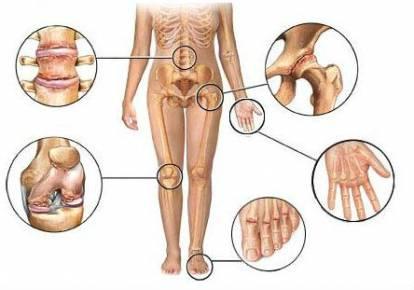fájdalom a bal csípőízületen térdízület ízületi képei