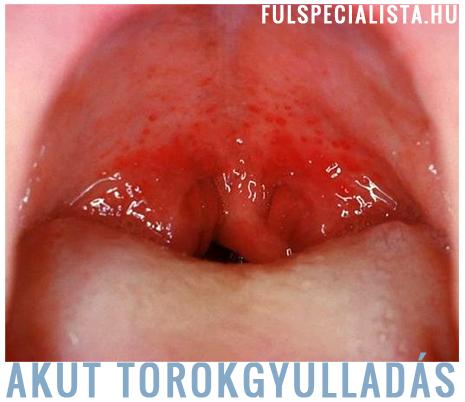 vírusos torokgyulladás kezelése házilag)