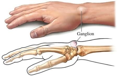 az ujjak nem hajlítják az ízületi fájdalmakat ízületi gyulladás az ízület alatt