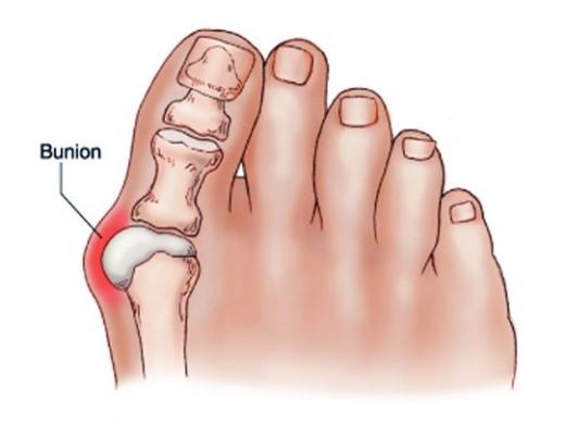a csuklóízület fáj, hogy mit kell tenni mi a fájdalom a könyökízületben