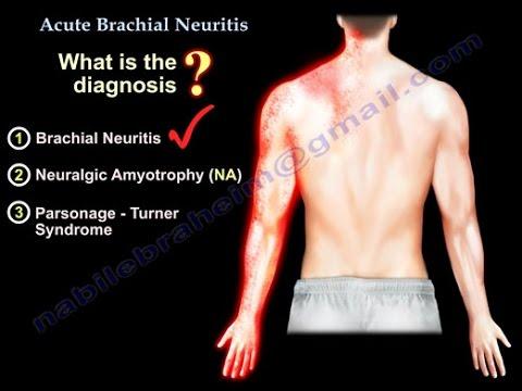 brachialis artrózis kezelés