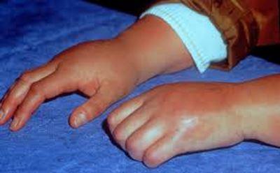 ízületi fájdalom szindróma