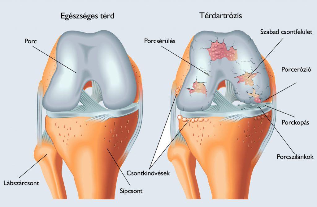 réz térdízületi kezelés orvosi készülék artrózis kezelésére