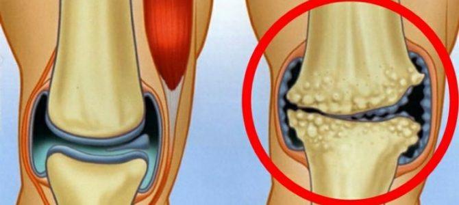 terápiás gyakorlatok az artrózis kezelésében