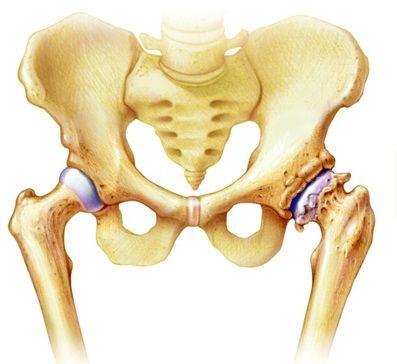 ízületi gyulladás mi a csípőízület deformáló artrosis a boka mértéke