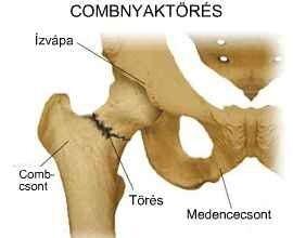A csípőtáji csonttörés utáni rehabilitáció hatékony módszerei